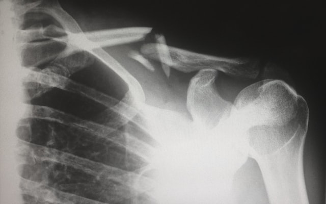 Catastrophic Injury Lawyer, Salem, Oregon Personal Injury Lawyer, Dunn & Roy, PC Attorneys At Law, Injury Xray Image