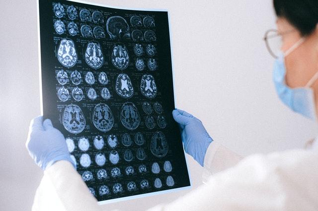 Traumatic brain injury TBI Salem, Oregon Personal Injury Lawyer, Dunn & Roy, PC Attorneys At Law, Brain Scan Image